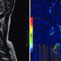MRI Ruggenmerg Specifiek Voor MS