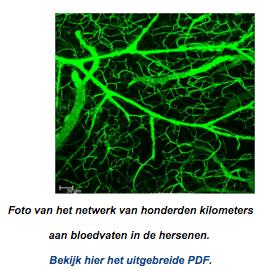 Foto van het netwerk van honderden kilometers aan bloedvaten in de hersenen