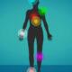 Gevoelsstoornissenen Pijn - MS Klachten
