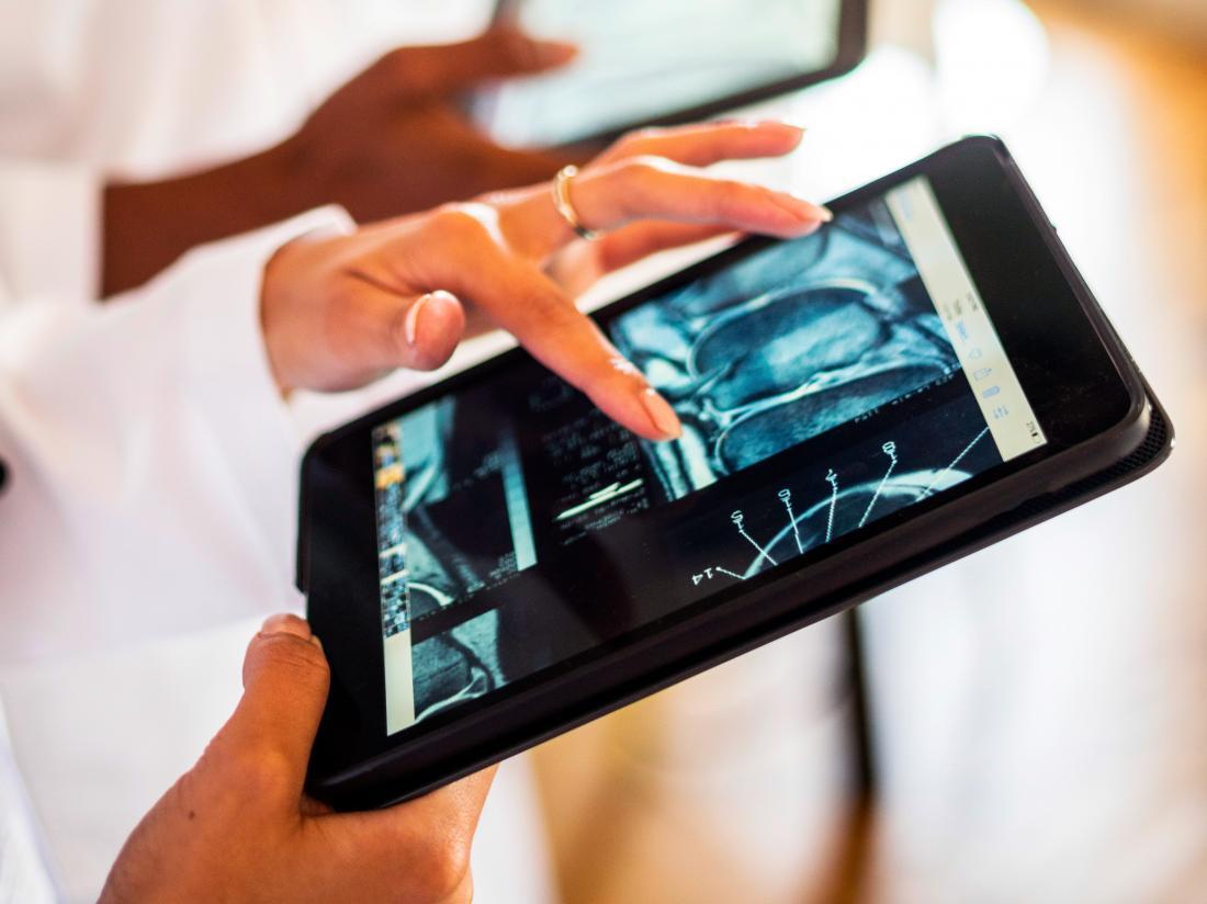 MRI Scan Bestuderen