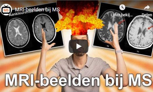 MRI-beelden Bij MS