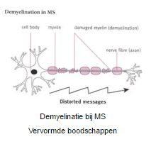 Demyelinatie bij MS