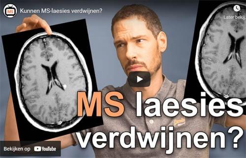 Video: kunnen MS laesies verdwijnen?